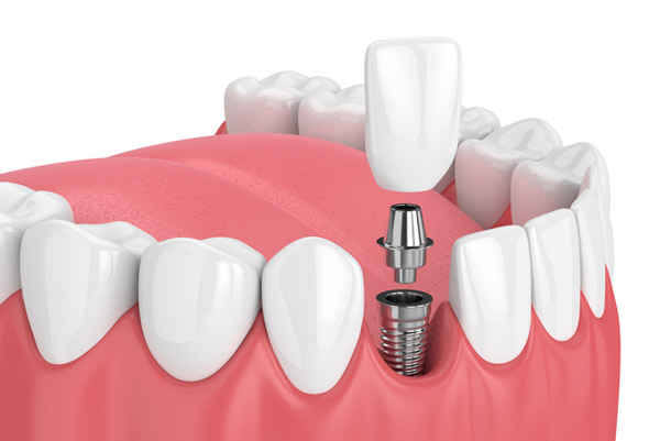 Dental implants from Surprise Oral & Implant Surgery in Surprise, AZ