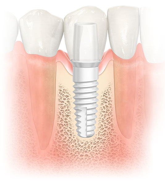 educational image of a Zirconia Implant.